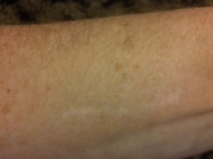 arm scar