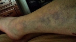 my legs were badly bruised...very painful. This shows the sore that came from nowhere.