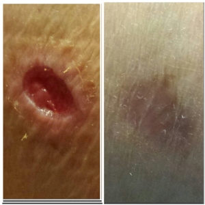 From Sept to January Still not fully Healed.